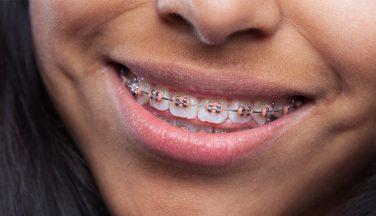 Ortodonzia Chioggia